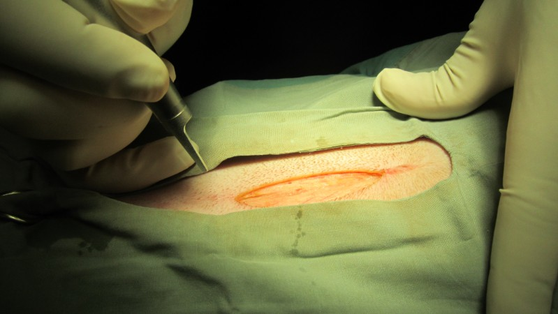 Spay incision with laser (no bleeding)